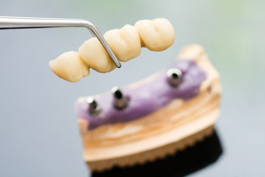 Unlicensed Dentist Taking Patients to Mexico to Perform Illegal Oral Surgery